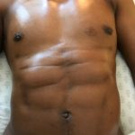 post cosmetic surgery male abs